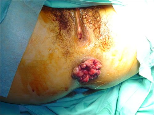 Quali prove fare su operazione di emorroidi